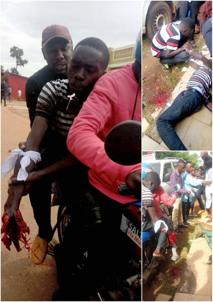 GRAPHIC IMAGES: Teargas canister shutters Kyambogo University student's hand in strike