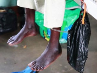 Men's absence for spouse support frustrating fistula management - Specialists